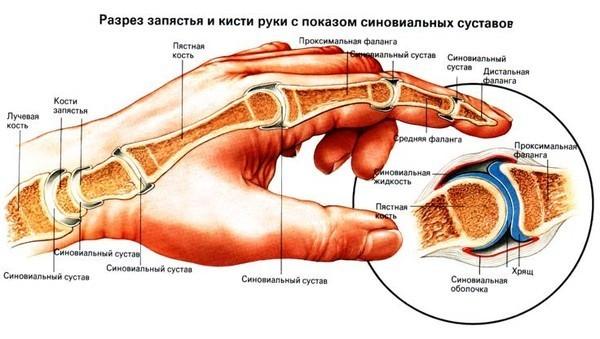 увеличен сустав указательного пальца