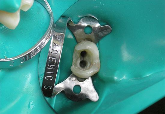 Болит пломбированный зуб почему