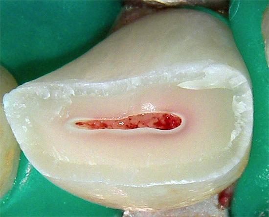 На фотографии показан сломанный зуб - из него тоже придется удалять нерв.