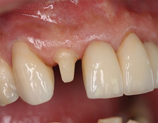 При подготовке зуба под коронку зачастую производится его предварительное депульпирование, но всегда ли это необходимо?..